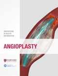 Angioplasty book summary, reviews and download