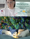 Melanoma Principles & Practice book summary, reviews and download