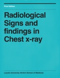 Radiological Signs and findings in Chest x-ray book summary, reviews and download
