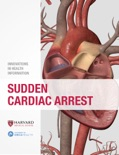 Sudden Cardiac Arrest book summary, reviews and download