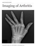 Imaging of Arthritis book summary, reviews and download